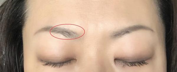 この赤マルで囲んだところのみ眉毛少々あり。アートメイクは眉全体に施しています